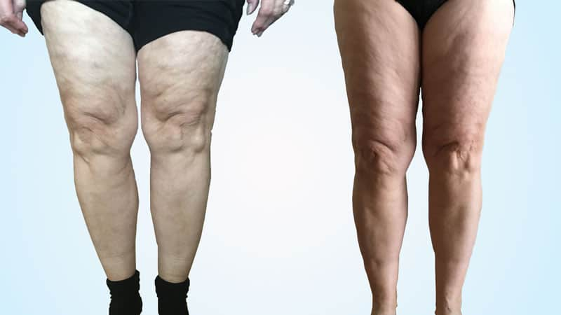 Block Therapy Cellulite Before & After